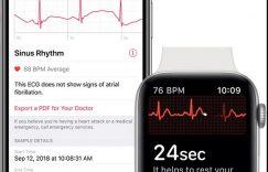 如果你想使用该功能,那么你的Apple Watch Series 4必须是美版(目前是这样),现在还不清楚该功能未来是否会扩展至全球范围(据说下一个可以使用这个功能的是加拿大),从产品本身上来说,全球范围内销售的Apple Watch 4均搭载了ECG功能所必须的心脏传感器,后期通过软件激活。 iPhone可以升级至iOS 12.1.1,并在健康APP中查看ECG数据。